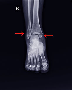 X-ray Right Ankle A woman 64 year ole ac