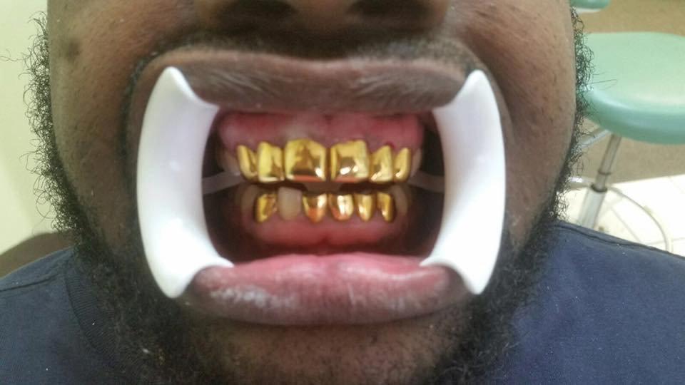 Gold Teeth