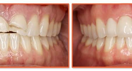 How soon should you fix a broken tooth?