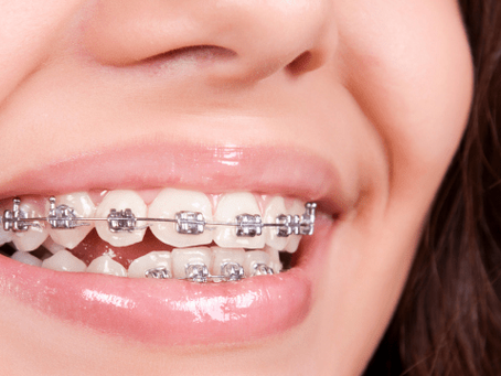 When's The Right Time For Braces?