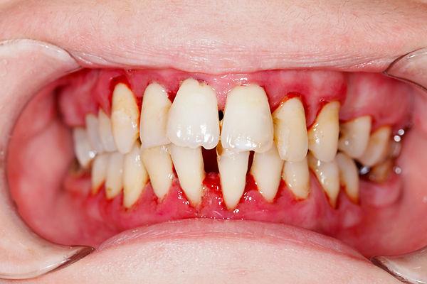 Gum-Disease, Capeside Dental. Dentist in