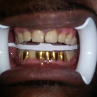 Gold Teeth   Melbourne FL   Capeside Dental
