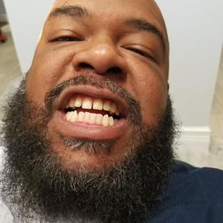 Gold Teeth     West Melbourne FL   Capeside Dental