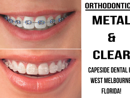 Why Should You Get Braces?