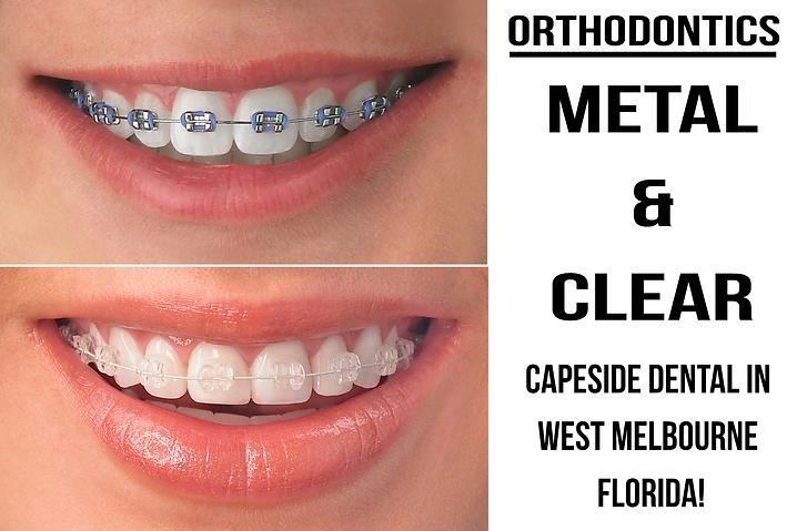 Dentist in West Melbourne   Capeside Dental