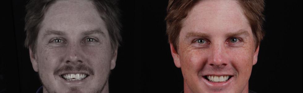 Restoring chipped and worn teeth with Porcelain Veneers