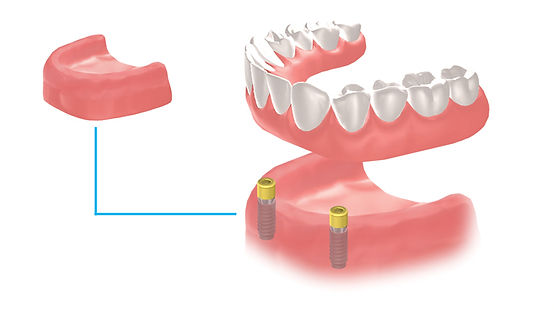 Implant locator abutment supported denture