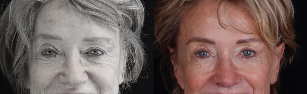Smile Design and Implant Restorations