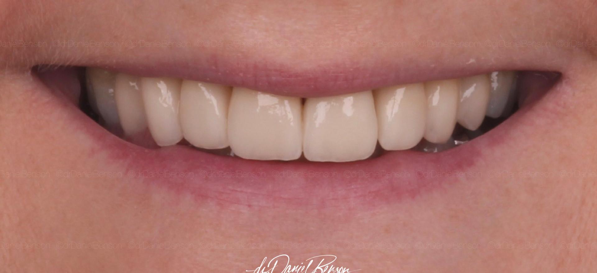 Final All-Ceramic smile