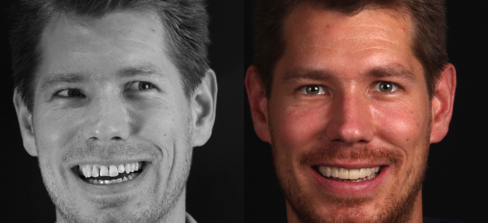 Enhancing a smile with Digital Smile Design