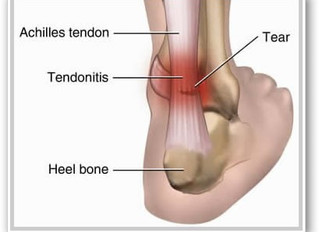 Tendinitis, Tendinosis, Tendinopathy – Do you know the difference?