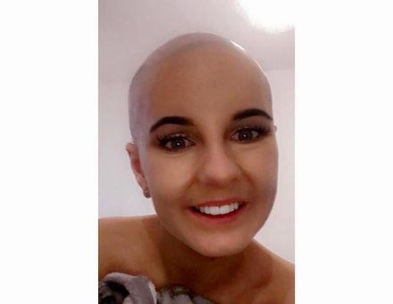 Charlotte bald selfie.jpg