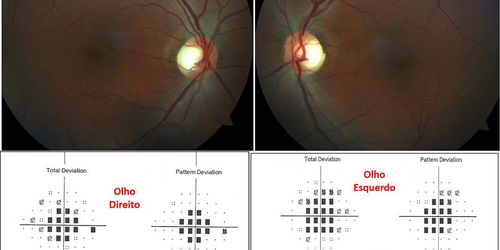 Neuropatias ópticas hereditárias, tóxicas e carenciais - AULA GRAVADA