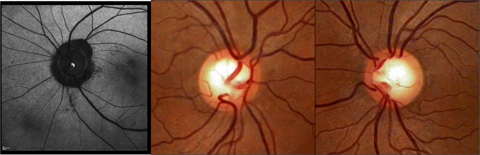 retinopati, glaucoma 1.png