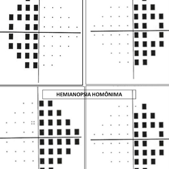 Síndromes quiasmáticas e retroquiasmáticas - AULA GRAVADA