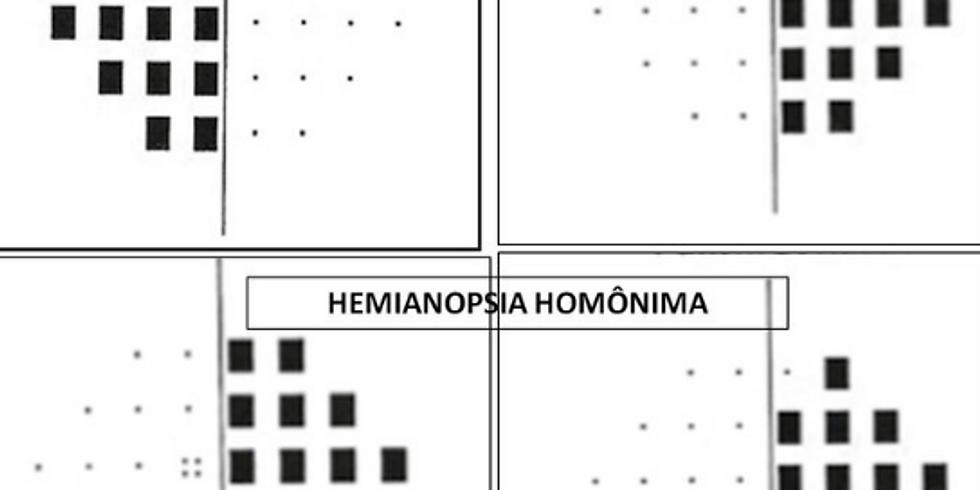 Síndromes quiasmáticas e retroquiasmáticas