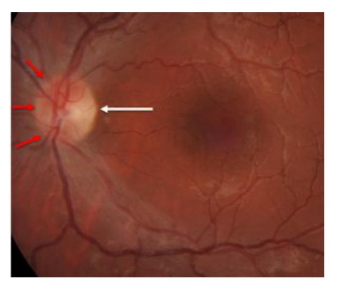 A seta branca mostra a região com atrofia; as setas vermelhas mostram as regiões com nervo corado normal.