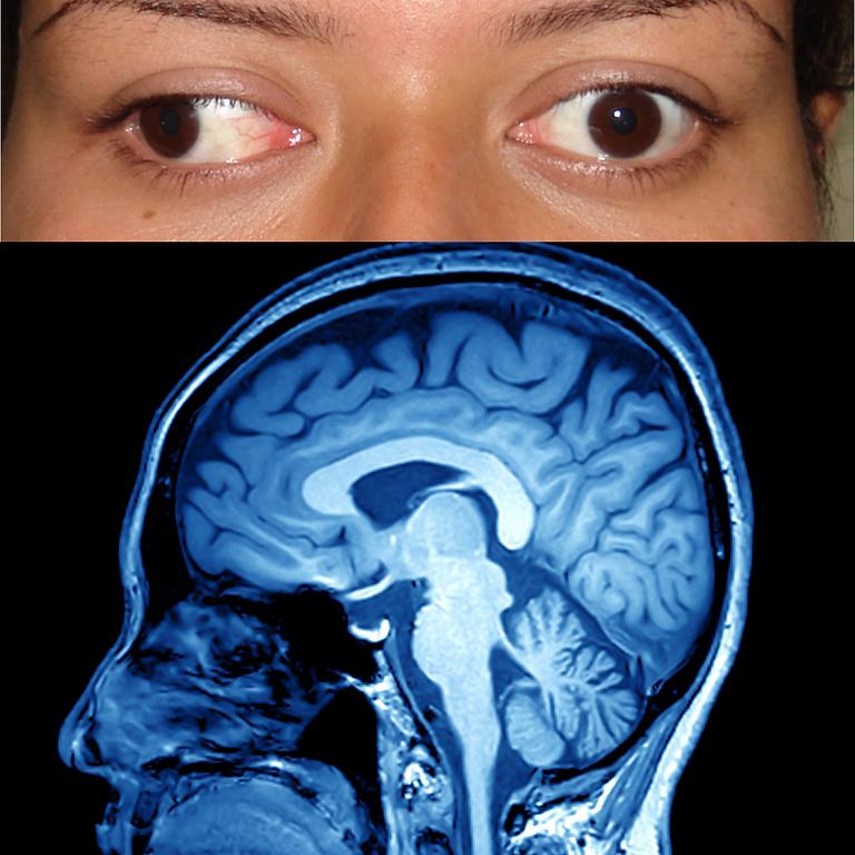 Como Localizar a Causa da Paralisia Ocular - APENAS AULA GRAVADA