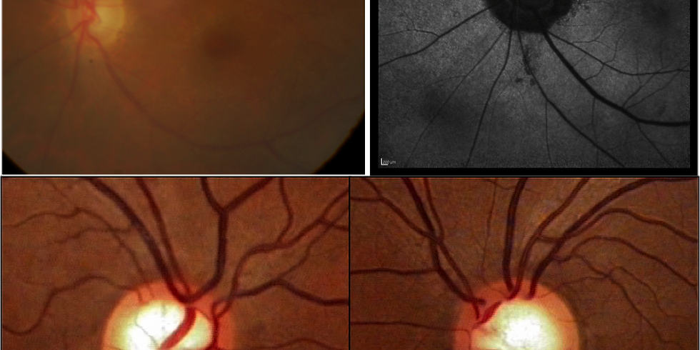 Diagnósticos diferenciais que você tem que saber: retinopatias e neuropatias ópticas não glaucomatosas - AULA GRAVADA