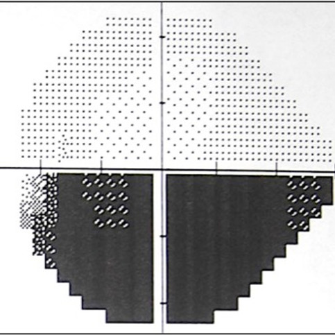 Neuropatia óptica isquêmica: anterior (não arterítica e arterítica) e posterior