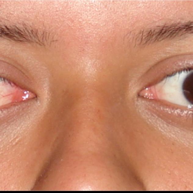 Paralisias oculares (neurogênicas e miogênicas)