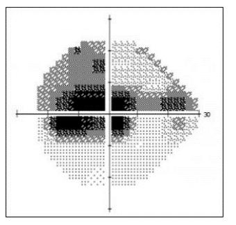 Neuropatia Óptica Hereditária de Leber - Uma doença Silenciosa