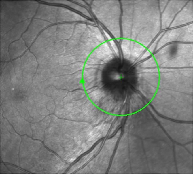 Tomografia de Coerência Óptica (OCT) nas Doenças Neurológicas