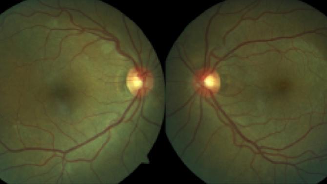 Maculopatia Oculta: Diagnóstico Diferencial da Neurite Óptica Retrobulbar
