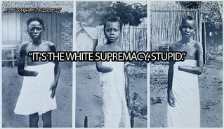 It's The White Supremacy, Stupid. [Re-Post from 2014]