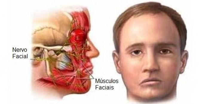 Paralisia Facial   Livia Scelza   Fonoaudiologia