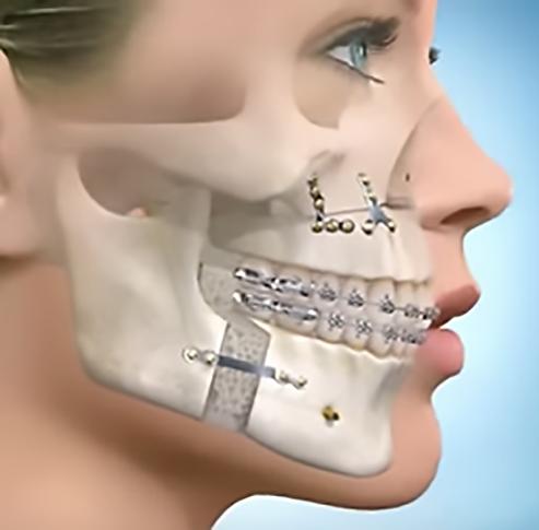 Cirurgia Ortognática | Livia Scelza | Fonoudiologia