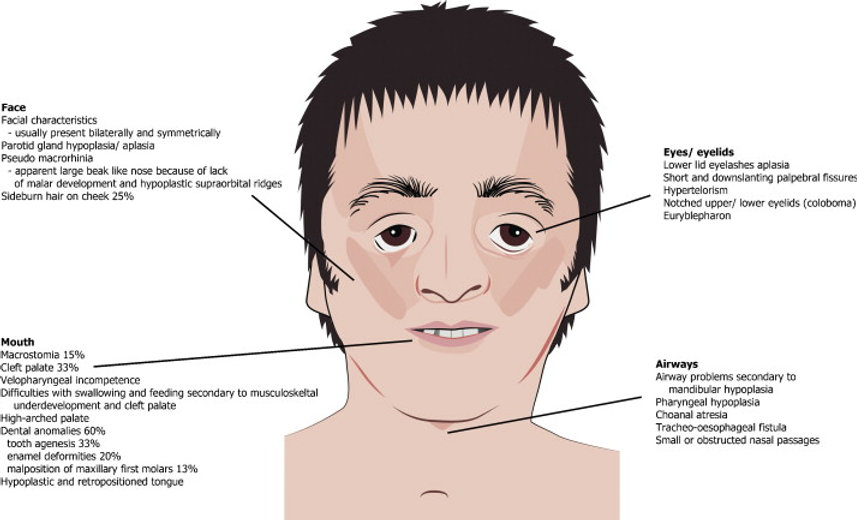 Síndrome de Treacher Collins