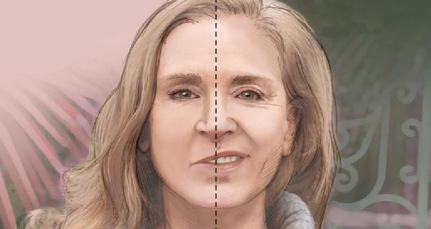 Paralisia Facial | Livia Scelza | Fonoaudiologia