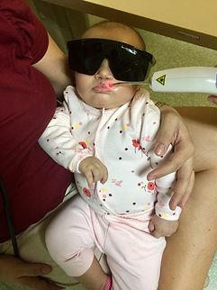 Laserterapia em Bebê