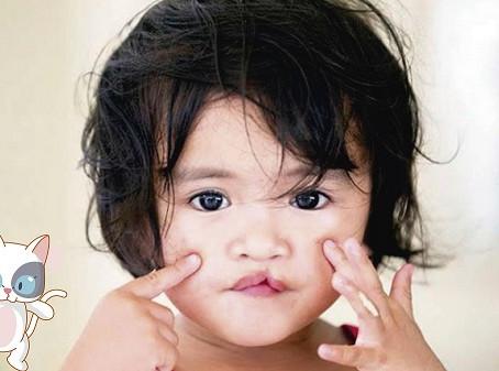 Desenvolvimento da fala na criança com fissura labiopalatina