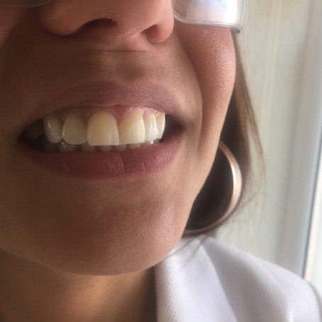 Composite Veneers (simple, aesthetic treatment for front teeth)