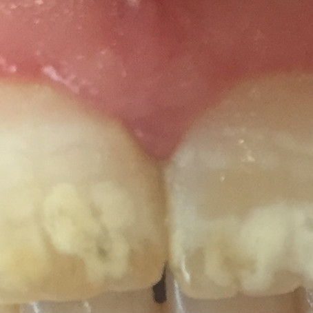 Treating Unsightly White spots on teeth