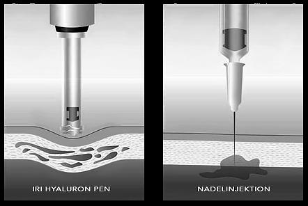 Hyaluron Pen München