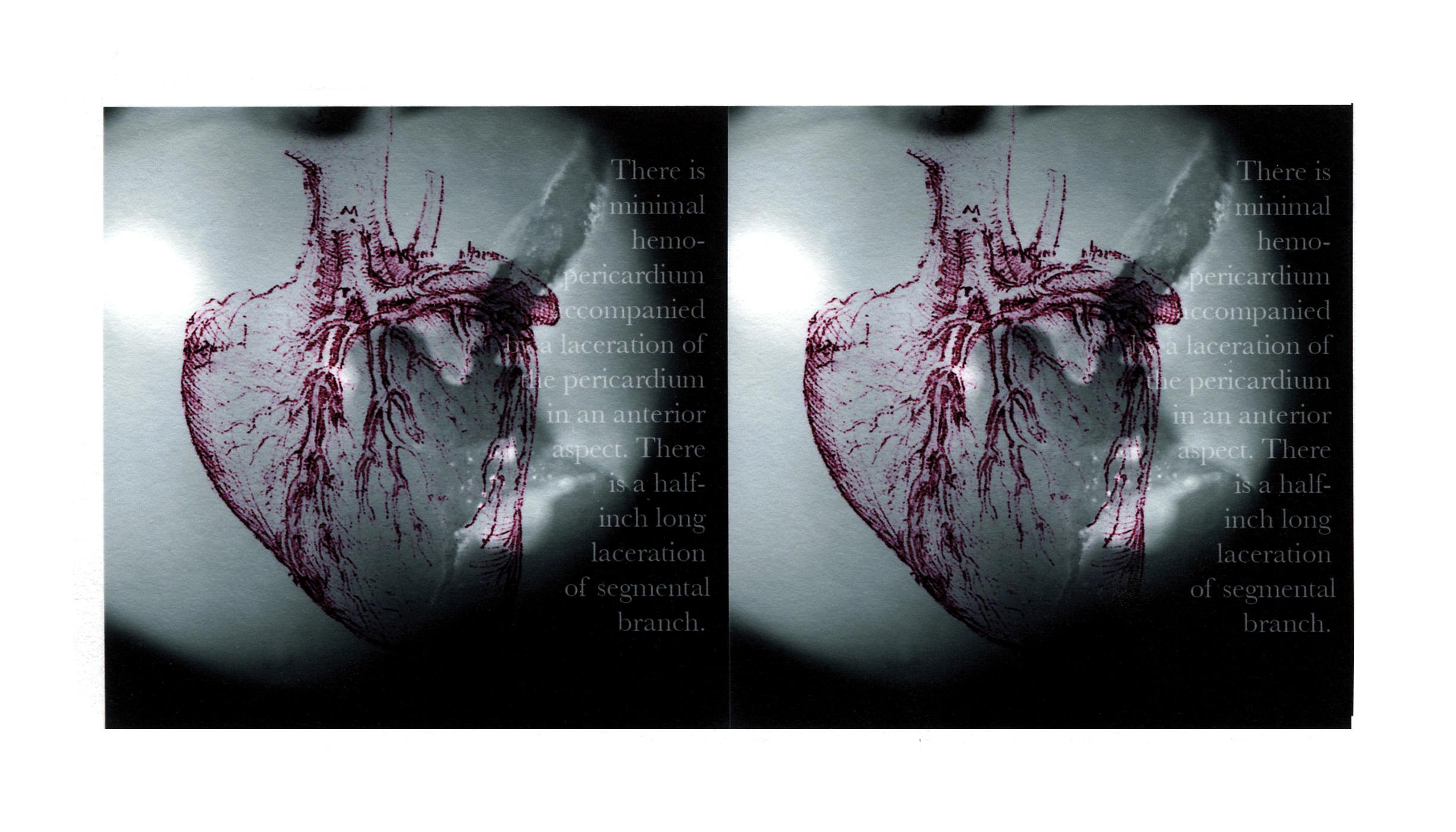Scope card Heart