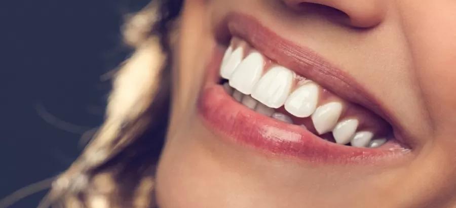 10 alimentos que amarelam os dentes
