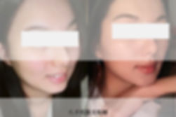 官網肉毒V臉案例圖.jpg