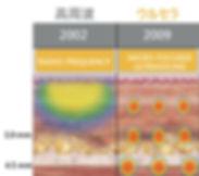 日文官網_服務項目_音波拉提_音波拉提的優勢.jpg