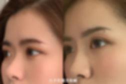 官網微晶瓷案例圖_微晶瓷鼻子2.jpg