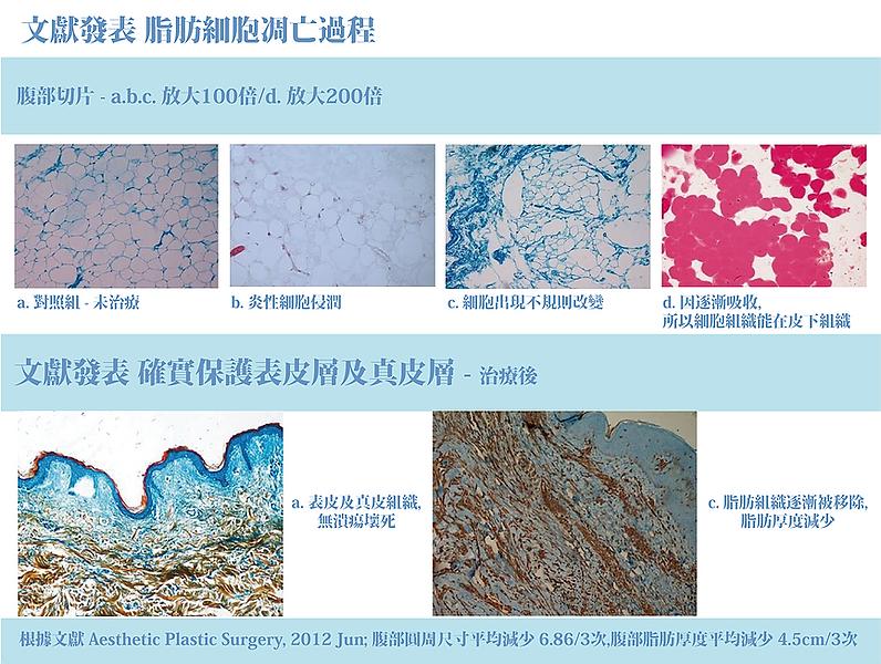 冷凍減脂-脂肪細胞凋亡過程.png