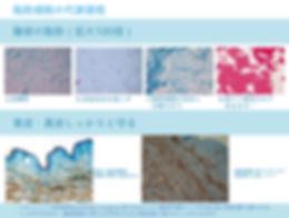日文官網_服務項目_冷凍減脂_脂肪細胞凋亡過程 .jpg