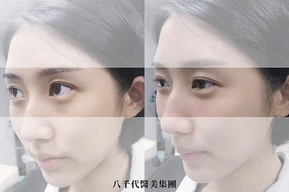 官網水微晶案例圖_淚溝.jpg
