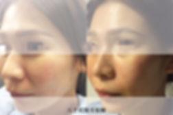 官網水微晶案例圖_法令紋.jpg