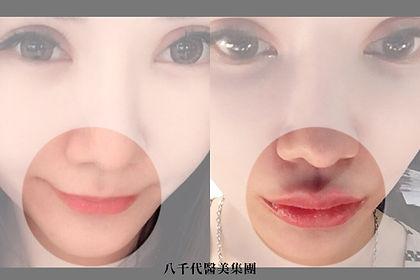官網水微晶案例圖_豐唇.jpg