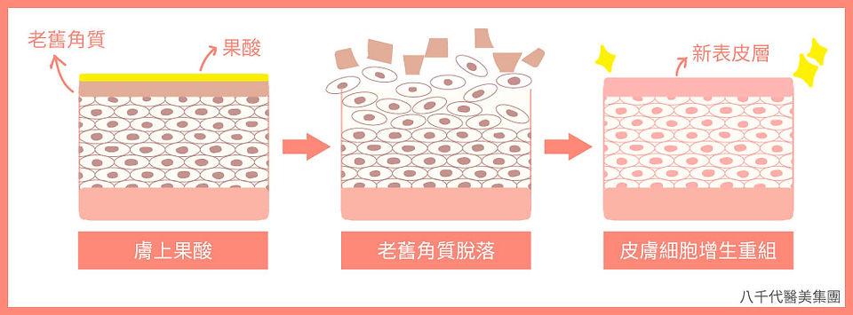 果酸煥膚_作用原理圖.jpg