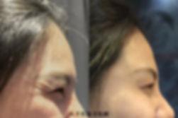 官網肉毒魚尾紋案例圖.jpg